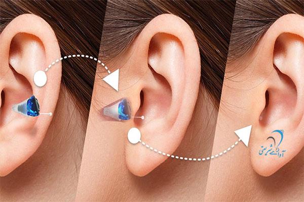کلینیک آوای شریعتی-سمعک - Silk hearing aid